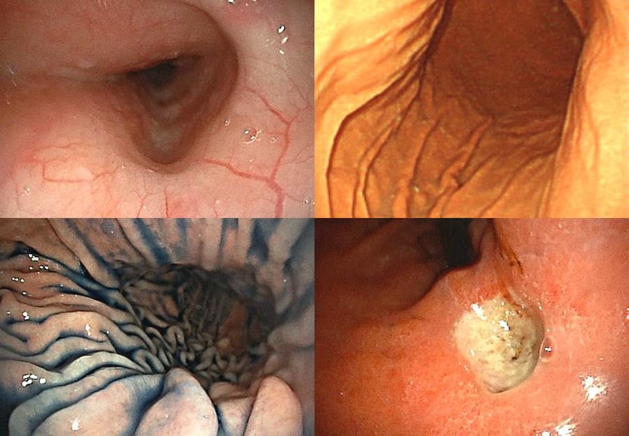胃カメラ(Upper Endoscopy)